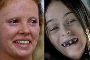 Die Zähne armer Leuter: Charlize Theron in